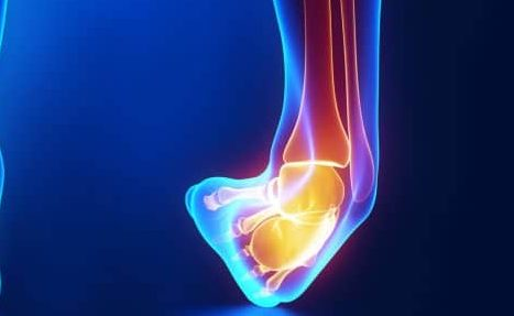 This image has an empty alt attribute; its file name is ankle12-1-edited.jpg