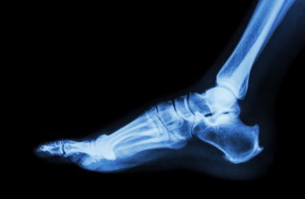 7 Ways to Step Up Bone Strength
