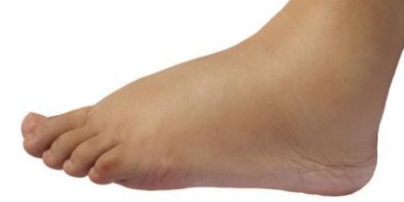 5 Questions to Ask if Your Feet Swell